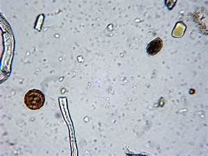 Fun With Microbiology (What's Buggin' You?): Hookworm ...