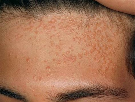 moles appearing    treatments