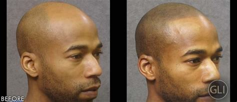 Hair Tattoos For Baldness   POPSUGAR Beauty Photo 10