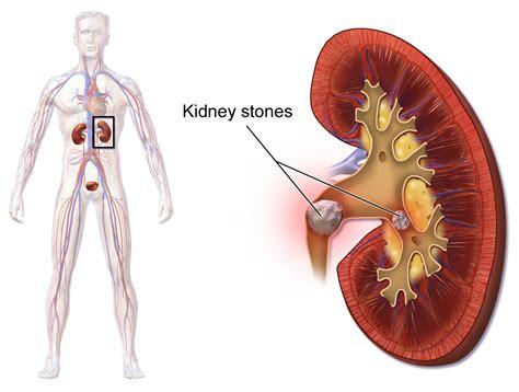 man damaged  kidneys  drinking   ice tea
