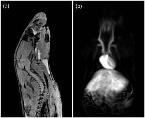 Sagittal And Carotid Contrast