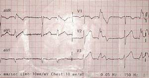 Dr  Smith U0026 39 S Ecg Blog  Stemi Seen Best In Pvc  Diagnosed By