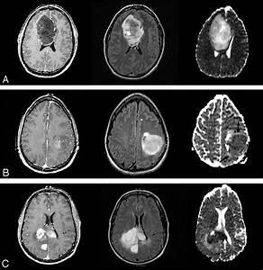 Brain Tumor Glioma Grade 3