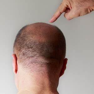 Natural Ways To Stop Hair Loss Health24