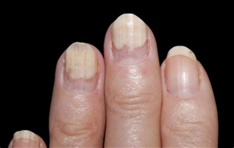 White Spots On Nail Beds by White Spots On Toenails From Nail 2015 Best Auto