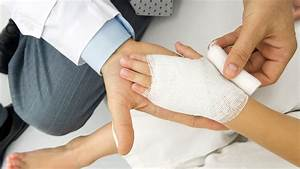 Burn, Injury, And, Treatment, Information