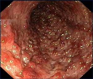 behandeling dikke darm ontsteking