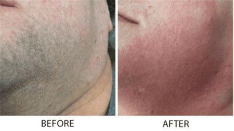 laser hair removal specialist bismarck  pure skin