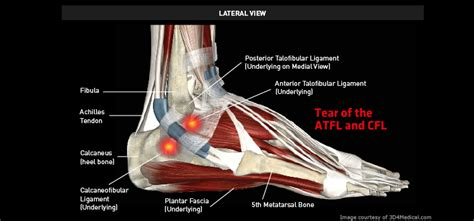 Tear of the ATFL and CFL – Thermoskin – Supports and ...