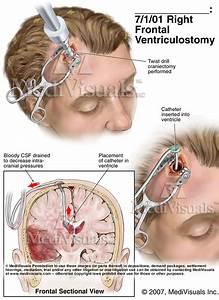 Understanding Traumatic Brain Injuries: Mild (less severe ...
