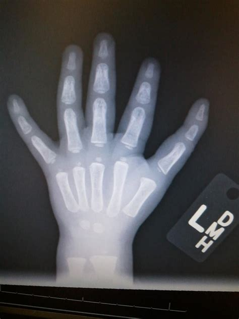 polydactyly  hand hand orthobullets