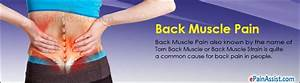 Back Muscle Pain  Treatment  Causes  Symptoms