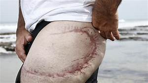 Bite Club's pain eased by government visit and shark ...