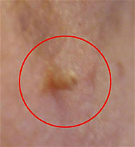 Skin Tags Causes, Pictures, Cancer Risk, Treatment