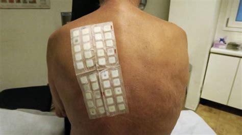 patch test sostanze test allergologici patch test