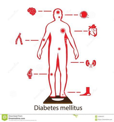 diabetes complications vector illustration cartoondealer