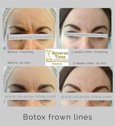 Wrinkle relaxing Botox injections in Hampshire | Reverse