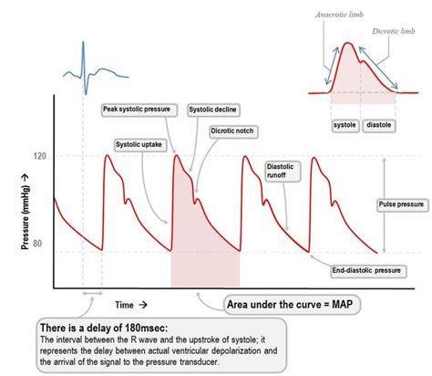 arterial pressure waveform | Arterial line, Cardiac