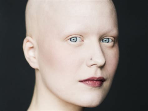 just natural alopecia hair loss alopecia totalis in women www pixshark com images galleries with a bite