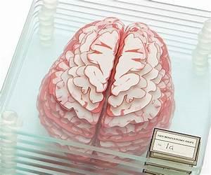 1237 Best Images About Neurology On Pinterest