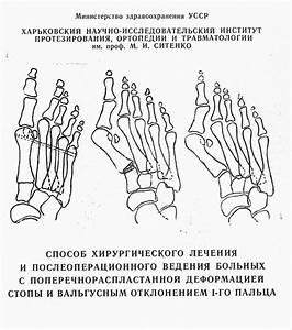 Артроз косточки на большом пальце ноги лечение
