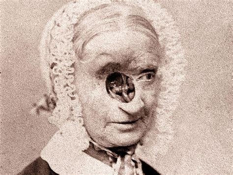 Eye Care In The 1800s 14 Shocking Photos Medical History