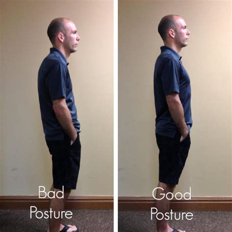 Good Posture. Do You Have it? | Community Chiropractic
