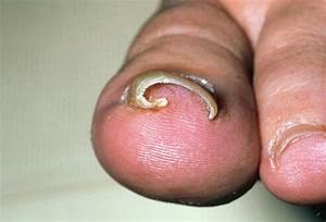 Ingrown Toenail Picture Image on MedicineNet.com