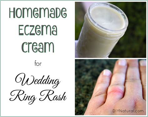 eczema relief for wedding ring rash and more