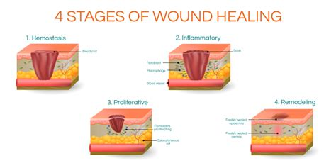 Can Exercise Speed Up Wound Healing?