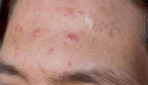 Cystic Acne: Causes, Symptoms, Treatments - Medical News Today