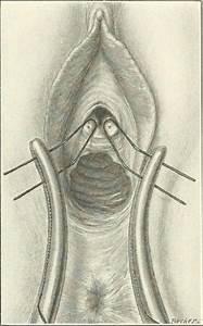 Skene's gland - Wikipedia
