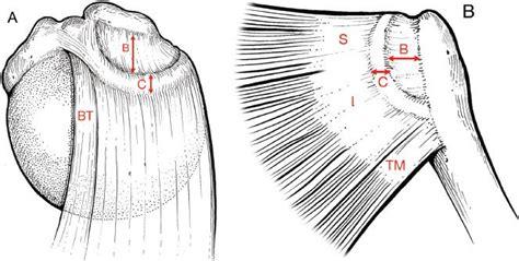 Large And Massive Rotator Cuff Tears