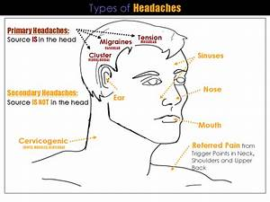 cluster headache location chart headache chart memes articles helpful stuff