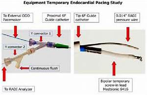 Set Up Of The 6f Guide Catheter With Radi Pressure Wire