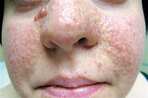 tuberous sclerosis facial angiofibromas
