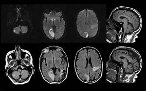 Acute Right Occipital Infarct  Old Left Frontoparietal Inf