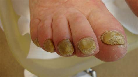Schimmelnagel behandeling pedicure