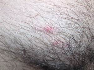 Pics Of Pubic Area Raised Lump On Pubic Area It Seems A