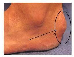 arri 232 re pied centre de chirurgie du pied et de la
