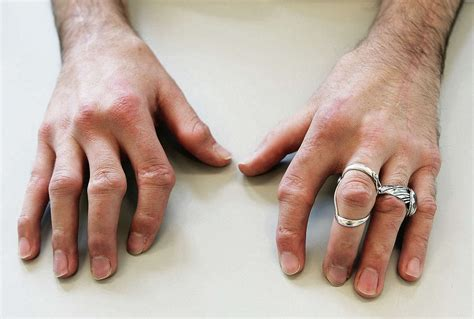 artrose heup behandeling