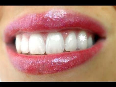 des dents blanches et tout de suite doovi