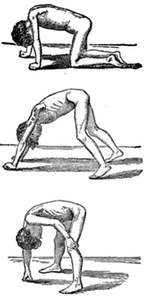 dystrophinopathies duchenne becker muscular dystrophy