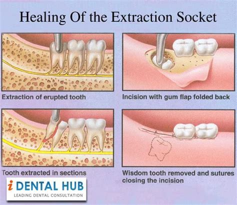 You might even be able to go back to work or do. The healing process of the extraction socket starts ...