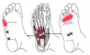 Pin En Health Myofascial Release Trigger Point
