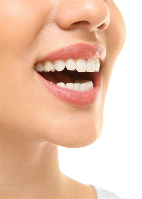bonding white filling cosmetic dentistry solutions