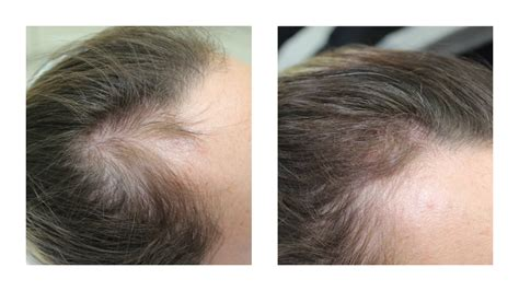 Hair loss - scalp and hairline micropigmentation | Empire