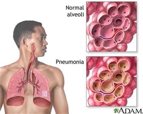 astma longen