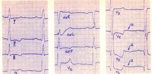 Гипертония миокарда левого желудочка сердца лечение