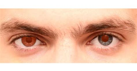 prosthetic contact lenses for light sensitivity therapeutic orion vision group